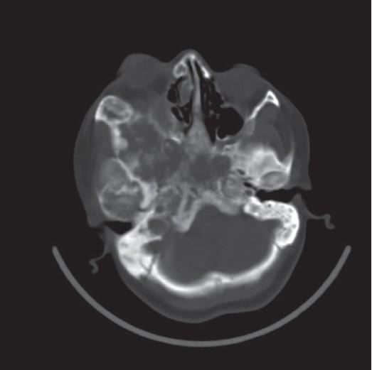fibrous dysplasia of bone causing unilateral proptosis, Human Body